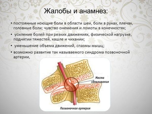 Жалобы при остеохондрозе