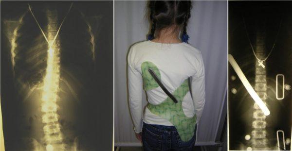 Жесткие корсеты для лечения сколиоза не носят круглосуточно