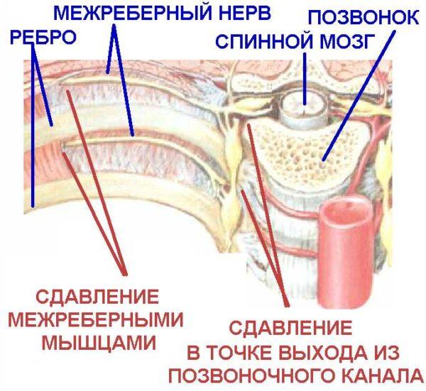 Защемление нерва при межреберной невралгии