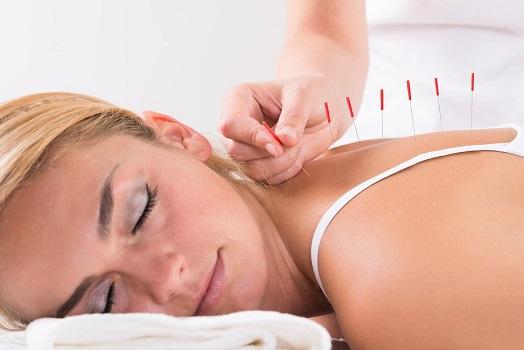 Иглотерапия - один из методов лечения протрузии грудного отдела