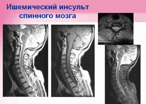 Ишемический инсульт спинного мозга