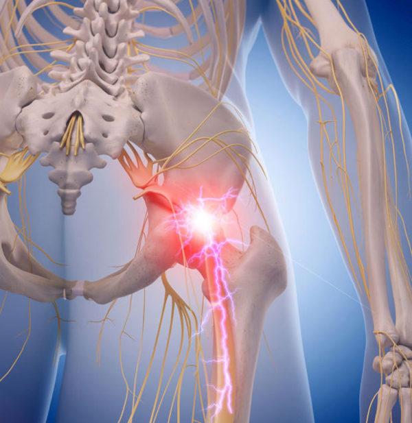 Ишиас – это совокупное название интенсивных болевых ощущений по ходу седалищного нерва
