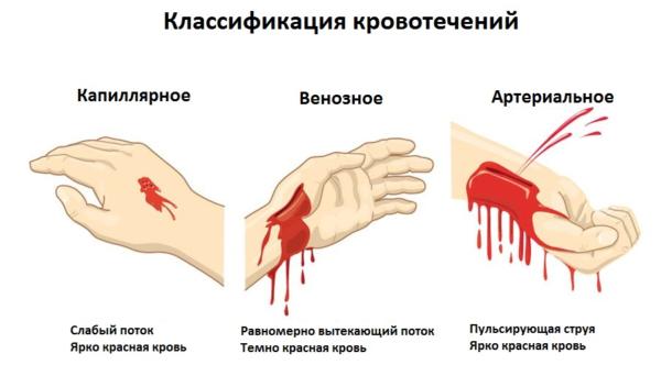 Как определить вид кровотечения