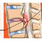 Протрузия грудного отдела позвоночника фото