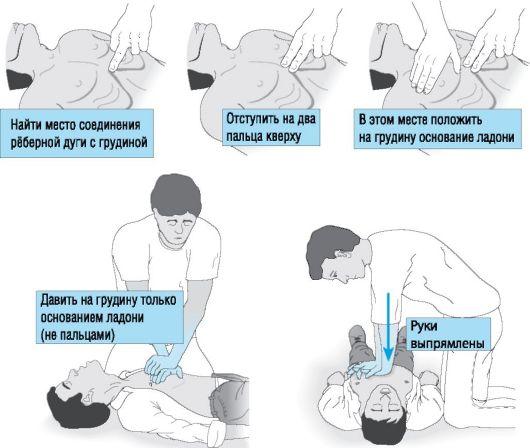 Как правильно делать непрямой массаж сердца