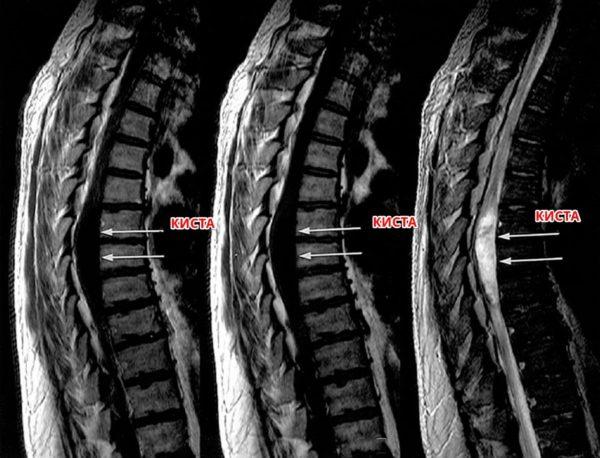 Киста спинного мозга