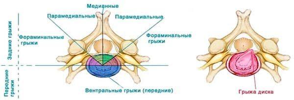 Классификации межпозвоночных грыж