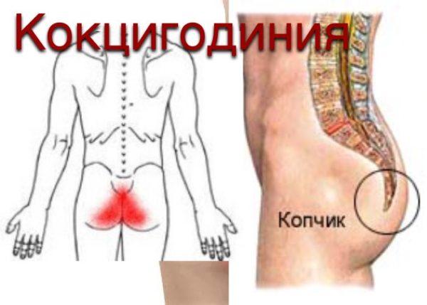 Кокцигодиния (боль в области копчика)