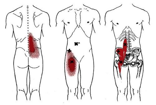 Локализация болей при воспалении подвздошно-поясничной мышцы