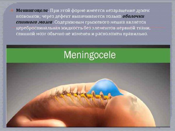 Менингоцеле - что это