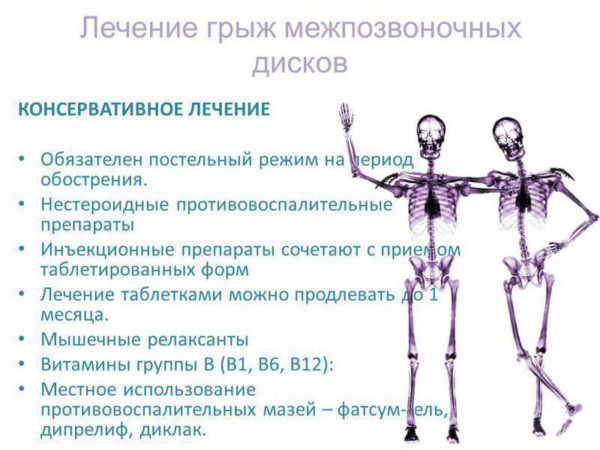 Методы лечения межпозвоночных грыж