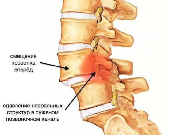 Механические травмы шеи могут спровоцировать хруст в шее