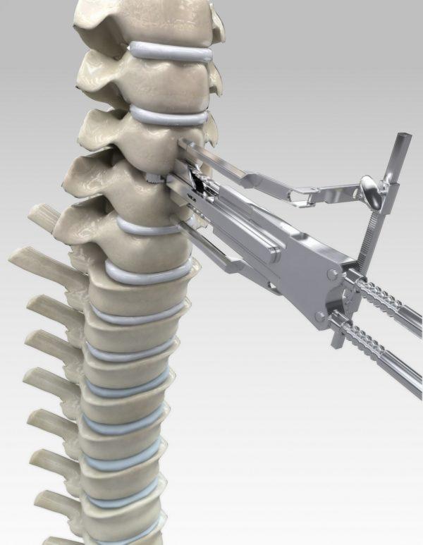 Микрохирургическое лечение межпозвоночной грыжи