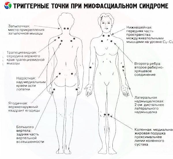 Миофасциальный синдром - триггерные точки