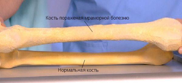 Мраморная болезнь (остеопетроз)