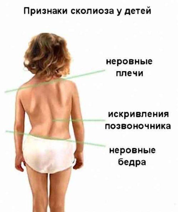 Наружные проявления сколиоза у детей