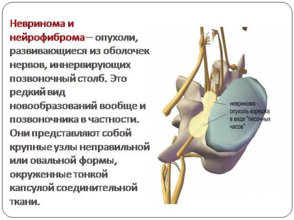 Невринома и нейрофиброма