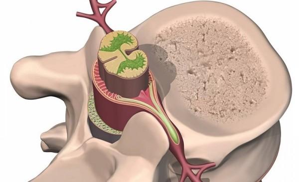 Невринома шейного отдела позвоночника