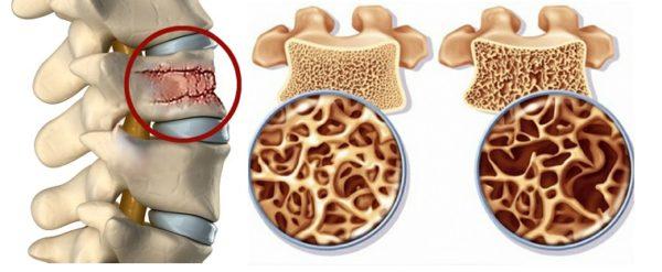 Нормальный позвонок и позвонок при остеосклерозе