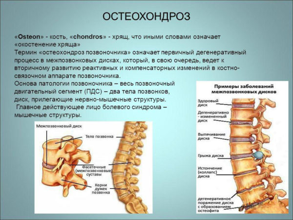 Определение остеохондроза