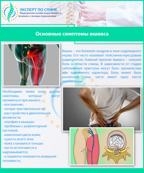 Основные симптомы ишиаса