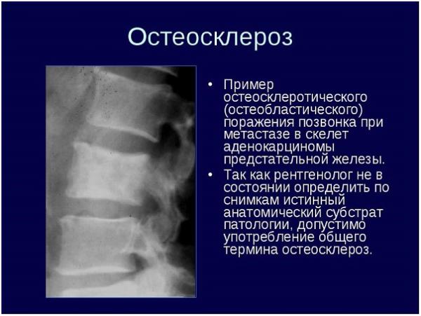 Остеосклеротическое поражение позвонка при метастазе