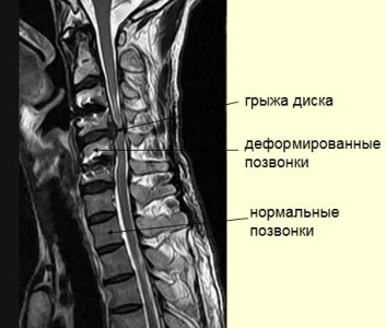Остеохондроз на снимке МРТ