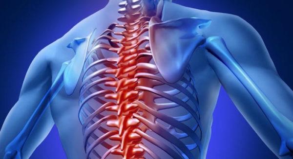 Отек костного мозга позвоночника: что это такое?
