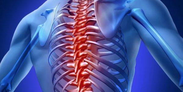 ПСО в грудном отделе ни имеет ярких симптомов и признаков