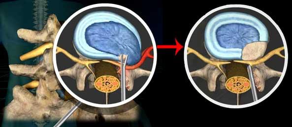 Перкутанная дискэктомия при грыже позвоночника