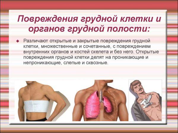 Повреждения грудной клетки и органов грудной полости