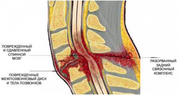 Поврежденный и сдавленный спинной мозг изнутри