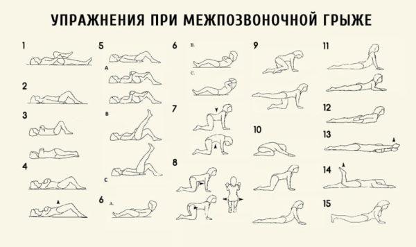 Полезные упражнения при грыже позвоночника