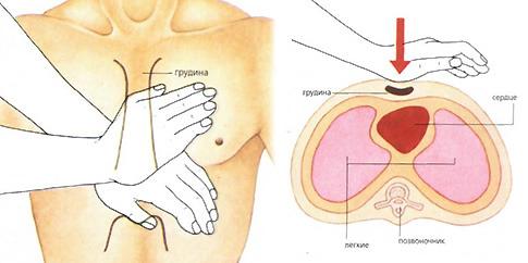 Правильное положение рук и место надавливания