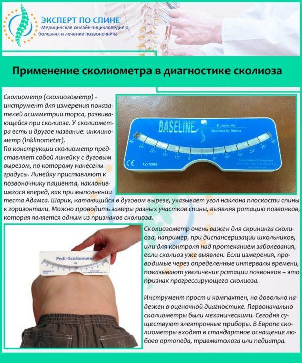 Применение сколиометра в диагностике сколиоза