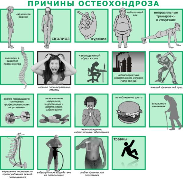 Причины, способствующие развитию остеохондроза