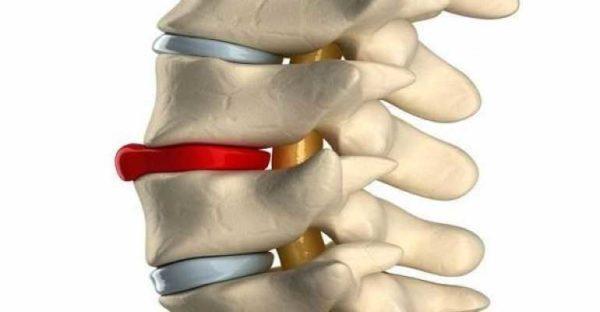 Протрузии грудного отдела позвоночника: симптомы, лечение и профилактика