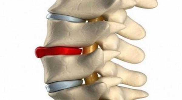 Как бороться с остеохондрозом: разнообразные методы и подходы