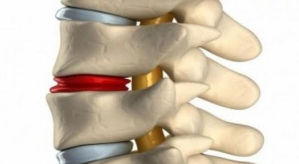 Лечение протрузии грудного отдела позвоночника в домашних условиях