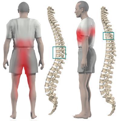Протрузия грудного отдела приводит к осложнениям во всем опорно-двигательном аппарате