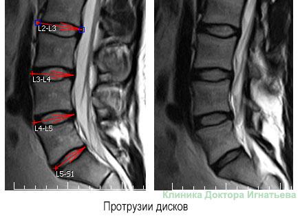 Протрузия межпозвоночных дисков поясничного отдела на рентгене