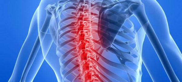 Профилактика инсульта спинного мозга