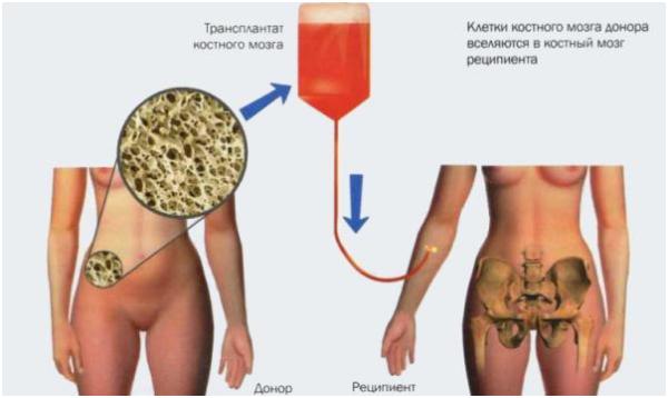 Процесс трансплантации костного мозга