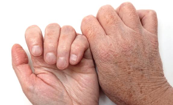 Проявление ксероза на руках