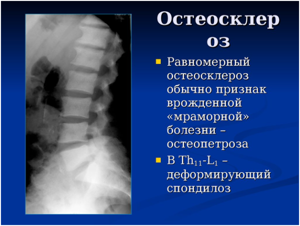 Равномерный остеосклероз