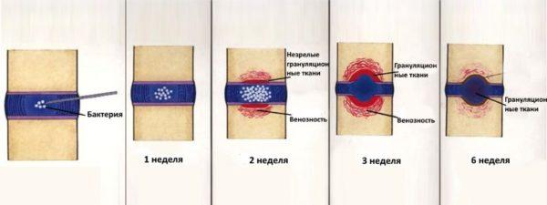 Развиваться спондилодисцит начинает внутри хрящевой ткани позвоночника