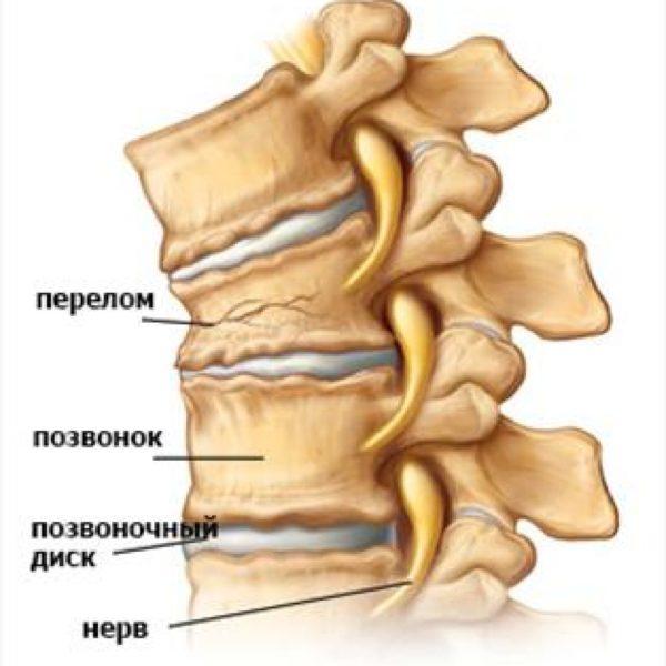 Разрушение части костной ткани при переломе позвоночника