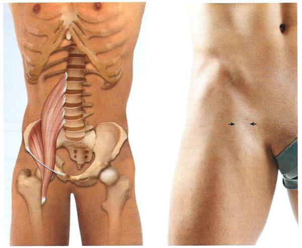 Расположение подвздошно-поясничной мышцы