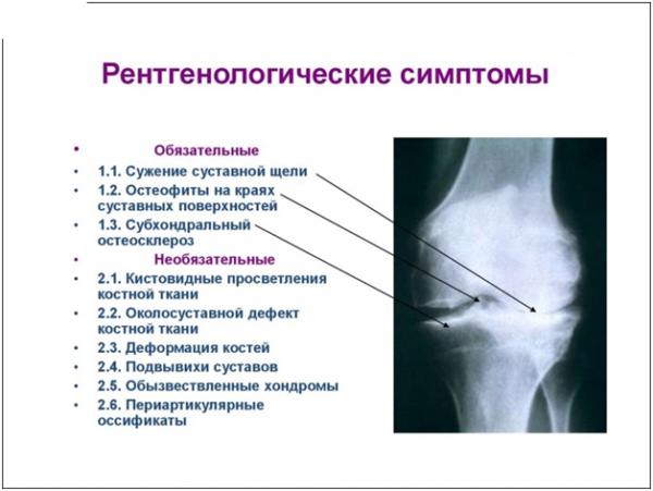 Рентгенологические симптомы остеосклероза