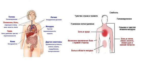 Симптомы сердечного приступа у мужчин и у женщин